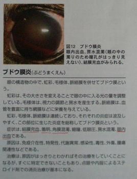 ぶどう膜炎解説2.JPG