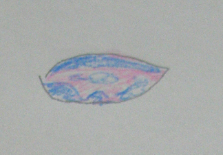 ぶどう膜炎_ステップ1.jpg