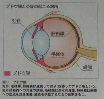 ぶどう膜炎解説1.jpg